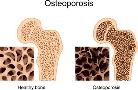Apa Perbedaan Antara Osteoporosis dan Osteoarthritis?